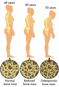 A picture showing the progression of osteoporosis as you age